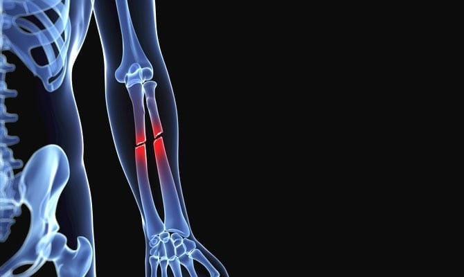 help bone fracture and bones essay Other causes are low bone density and osteoporosis, which cause weakening of  the bones overuse can cause stress fractures, which are very.