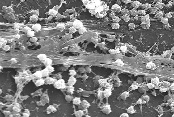 Nanotech weapon against chronic bacterial infections