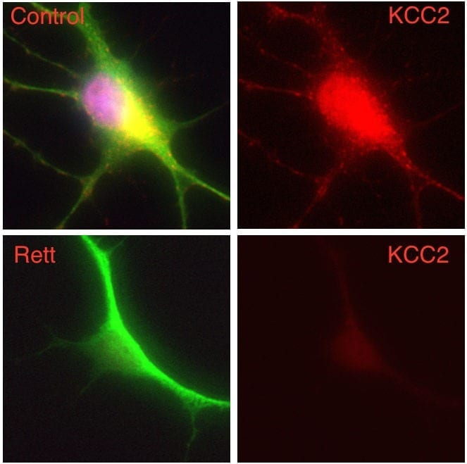 In this composite image, a human nerve cell derived from a patient with Rett syndrome shows significantly decreased levels of KCC2 compared to a control cell. Image: Gong Chen lab, Penn State University