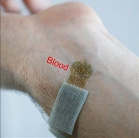 A sensor that attaches to the skin is used to detect blood flow changes important in monitoring vascular conditions.