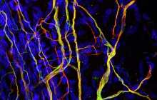 Research on the effect of nerve cell stiffness on sensitivity to touch could lead to new painkillers