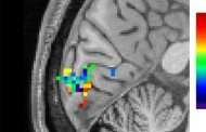 Tracking brain activity during human thought