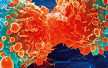 Low-cost artificial intelligence image detection method for cervical cancer