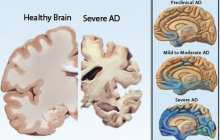A potential predictor for early dementia even before individuals notice their own memory problems