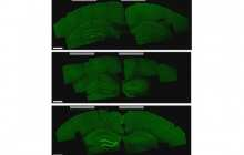 A new noninvasive method using electrodes on the scalp for deep brain stimulation