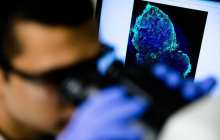 An imaging pill to diagnose breast cancer