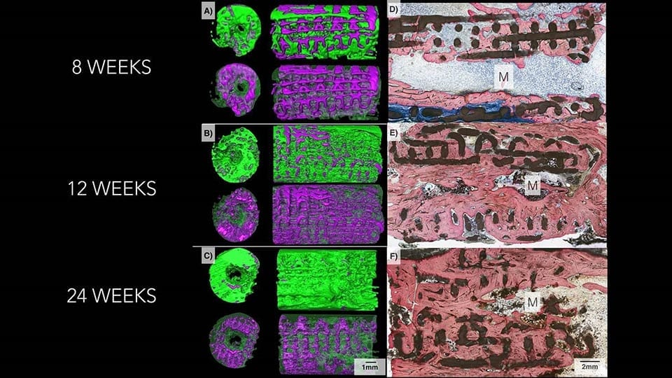 3D printed implants can help grow real bone