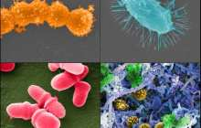 Fecal microbiota transplantation could offset harsh effects of antibiotics in cancer patients