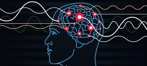 Stimulating the brain to treat chronic pain