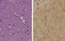 Detecting prion infections before symptoms appear with a new skin test