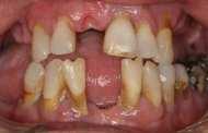 Could gum disease have an impact on Alzheimer's disease, rheumatoid arthritis and aspiration pneumonia?