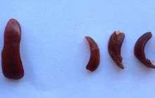 Eliminating damaged mitochondria alleviates chronic inflammatory disease - in mice