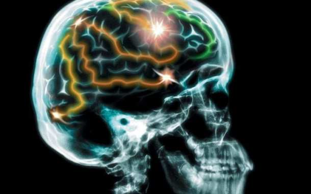 New approach to Parkinson's disease therapy using smart brain simulators