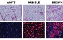 HUMBLE cells, created from human white fat, can treat metabolic diseases such as obesity and type 2 diabetes