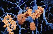 Could a new vaccine help to halt the progression of Alzheimer's disease?