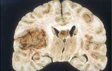 Eradicating recurring brain cancer: Glioblastoma nanomedicine crosses into the brain - in mice