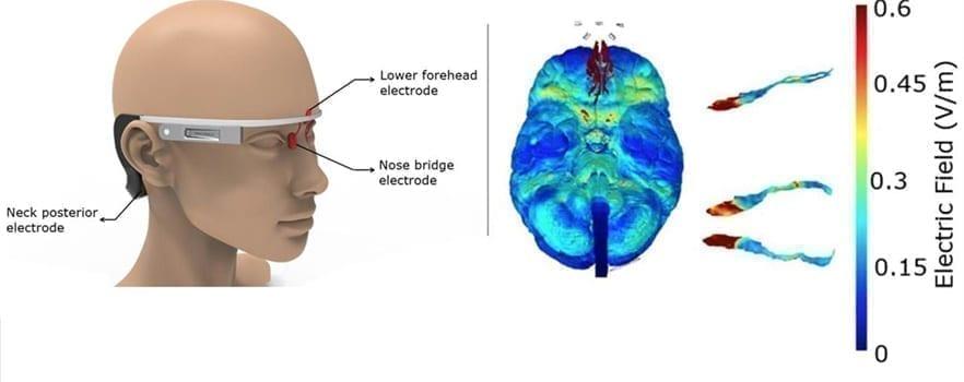 Image of the wearable stimulator
