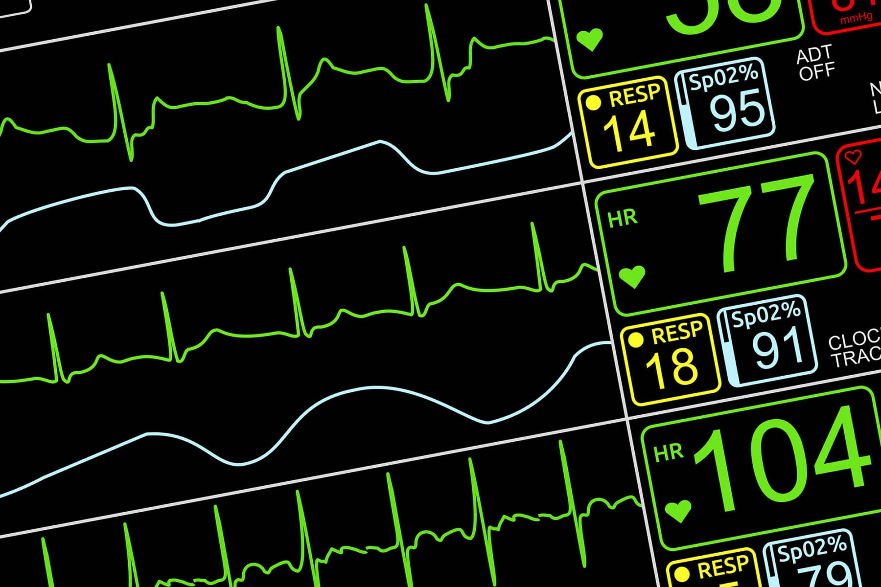 Patient's vital signs on ICU monitor, isolated closeup, dutched left via UVA
