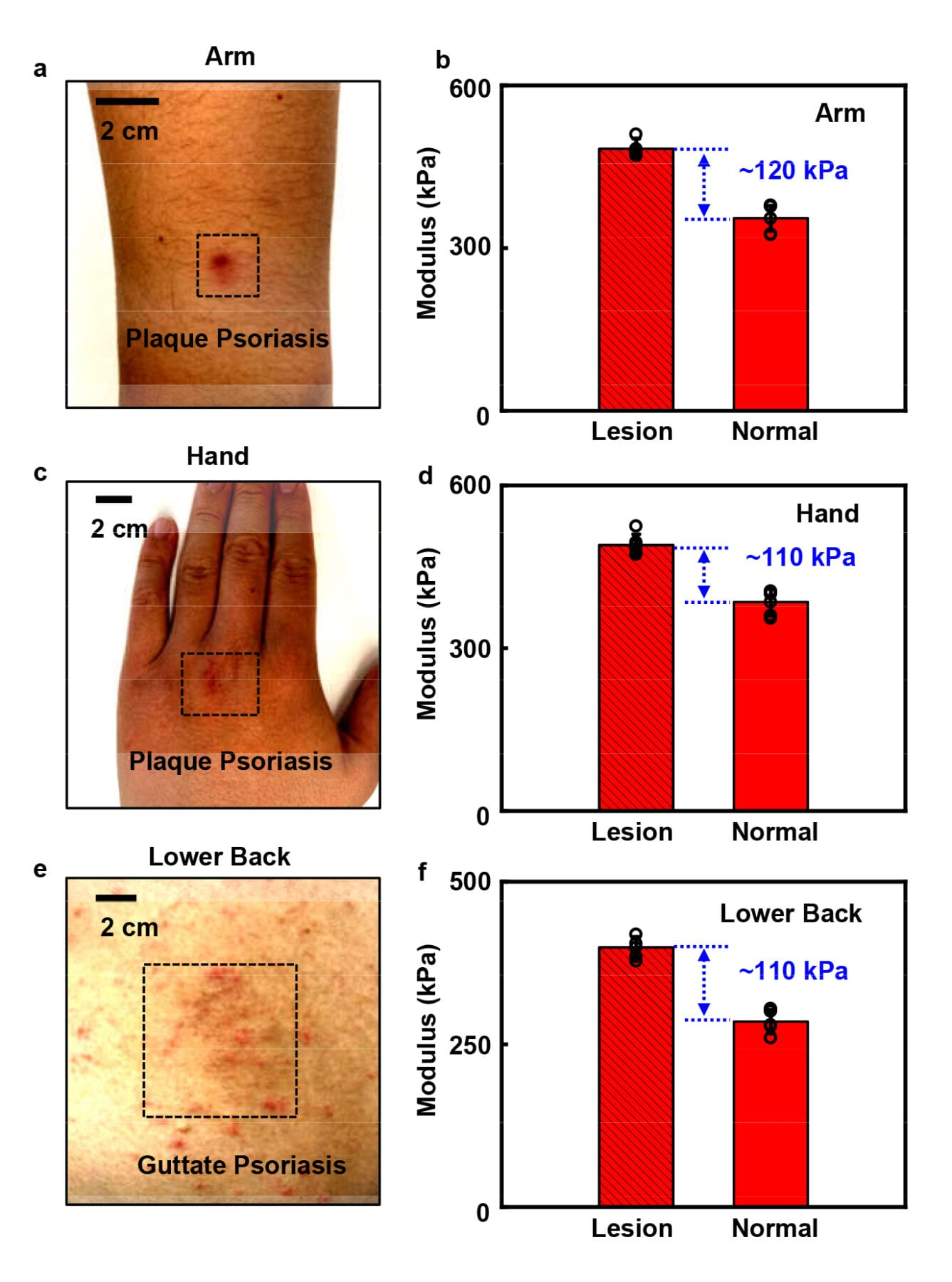The team applies the device on the skin lesions associated with psoriasis on the arm (a), hand (c), lower back (e) and the unaffected skin. Figure b, d and f show the results of stiffness variations between unaffected skin and lesion regions. (Photo source: Song, E., Xie, Z., Bai, W. et al. / DOI number: 10.1038/s41551-021-00723-y)