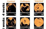 A promising way to regenerate bone via a new regenerative implant technology