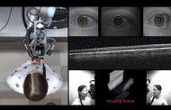 50 second diagnostic imaging for your eyes using a new robotic scanner