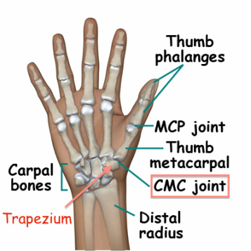 Do You Suffer from Thumb Pain?