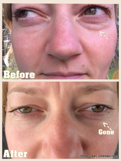 Nerium Before & After Pictures