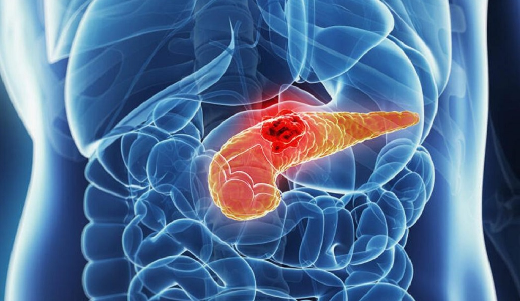 Perche-e-difficile-trattare-il-cancro-al-pancreas.jpg?fit=1047%2C605&ssl=1