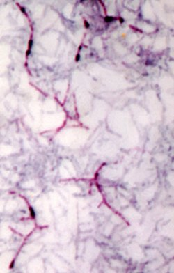 Acid Fast Bacteria (AFB) in sputum smear
