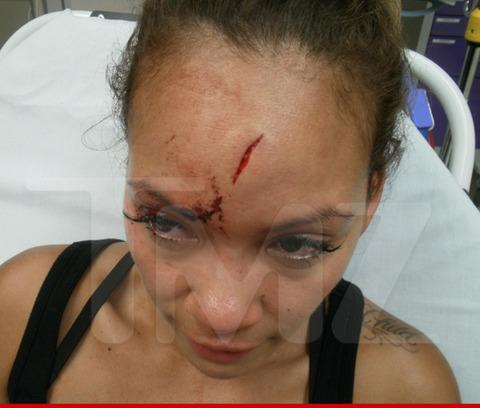 0617-evelyn-lozada-injuries-wm-4-480w