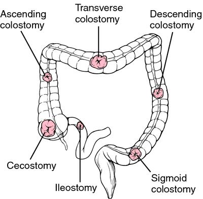 Ostomy types