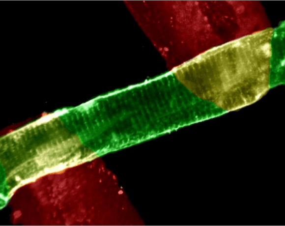 Measuring Force in Single Heart Cells