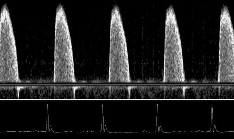 A Noninvasive Alternative to +dP/dtmax: Peak Aortic Blood Acceleration