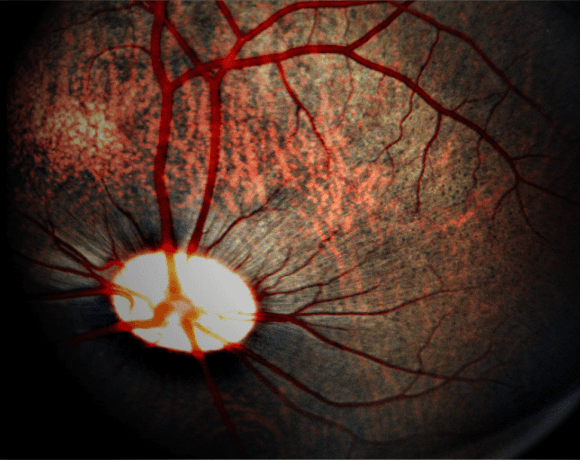 Studying Retinal Function in Large Animals: Laser-Induced Choroidal Neovascularization in Pigs