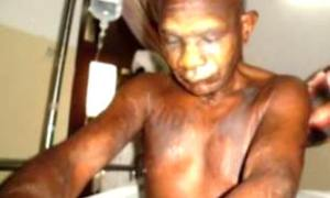 Father Anselm Mwang'amba displays his terrible injuries.
