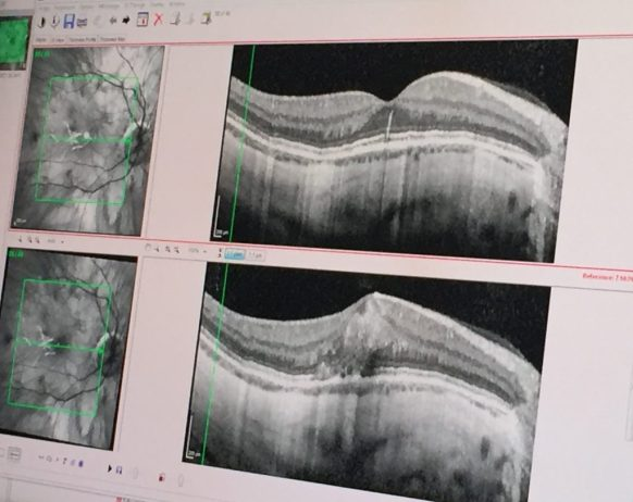 Myopic Macular Degeneration OCT Scan