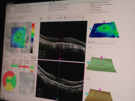 Computer monitor showing OCT images and measurements of Theresa's retinas.