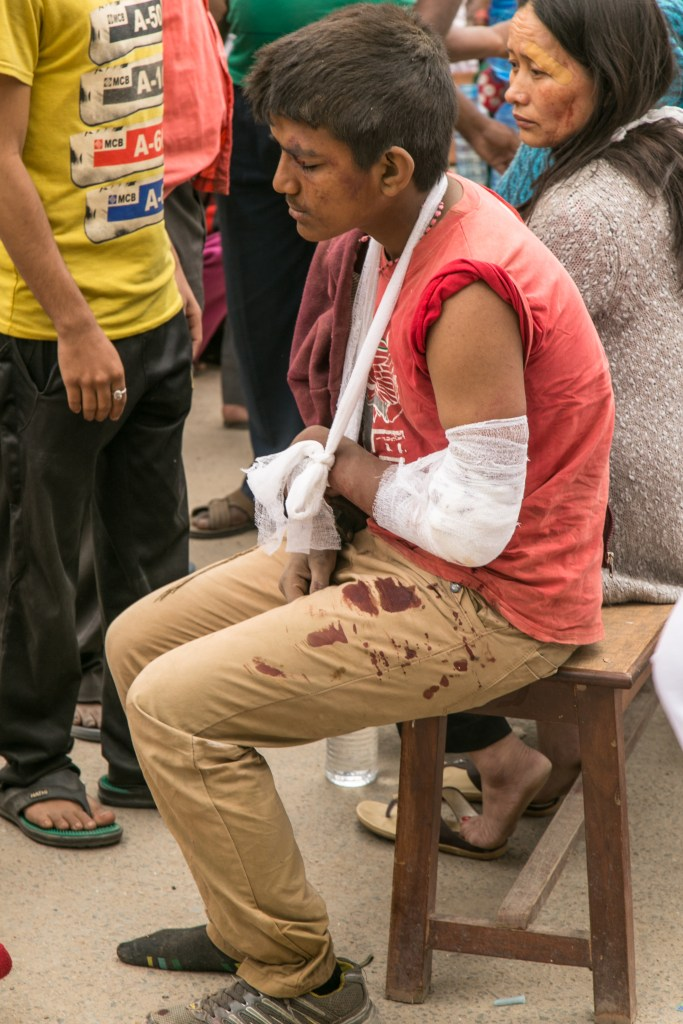 An injured man sits near the hospital after receiving medical treatment.