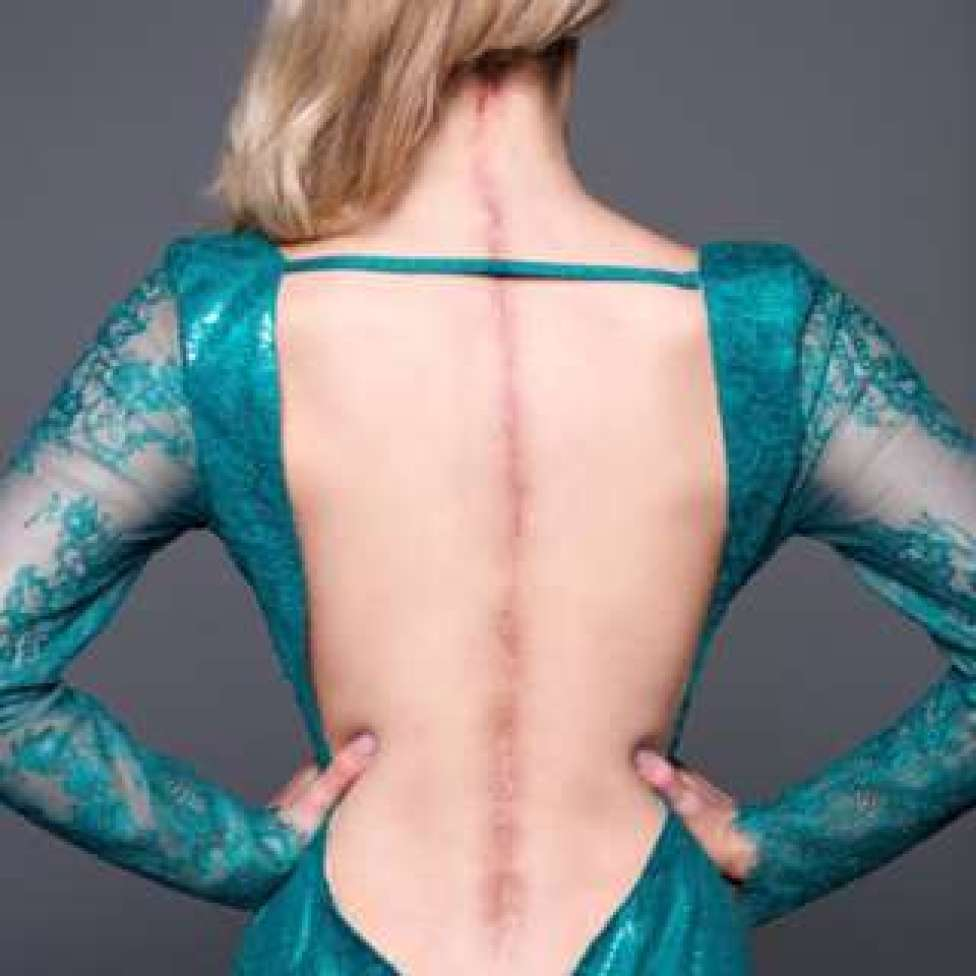 Victoria poses in an open ball gown showing a 25 inch scar from her surgeries down her spine