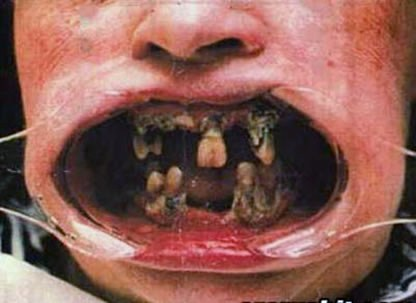 meth mouth 4 KS1cz 16638