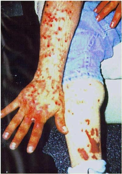 meth skin 2 uP1aA 16638