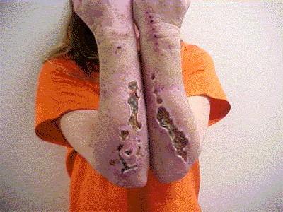 meth skin 4 TPuz4 16638