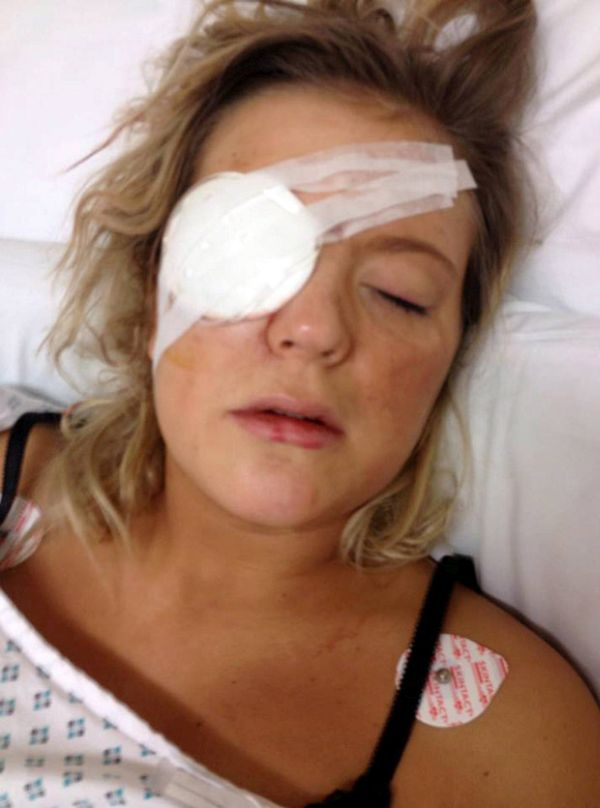 Woman pulls out friend's eyeball with stilettos