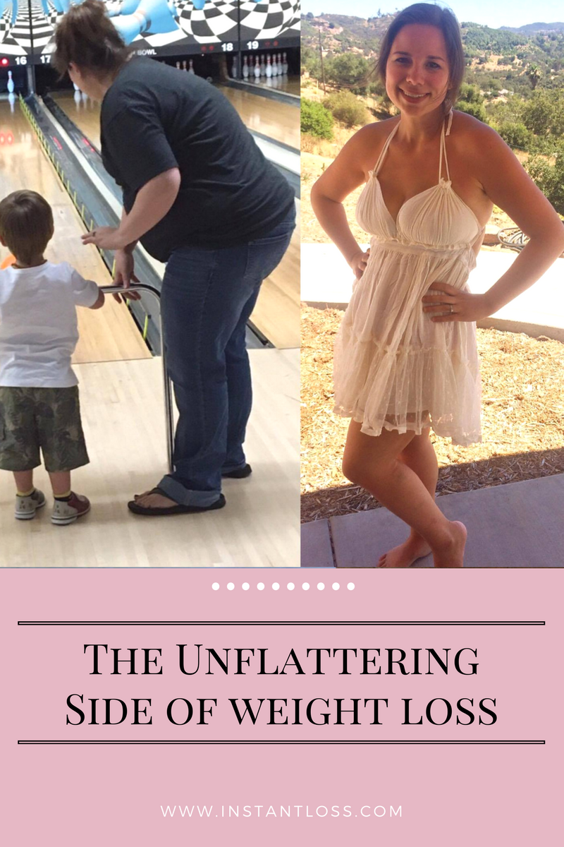 The Unflattering Side of Weight Loss instantloss.com