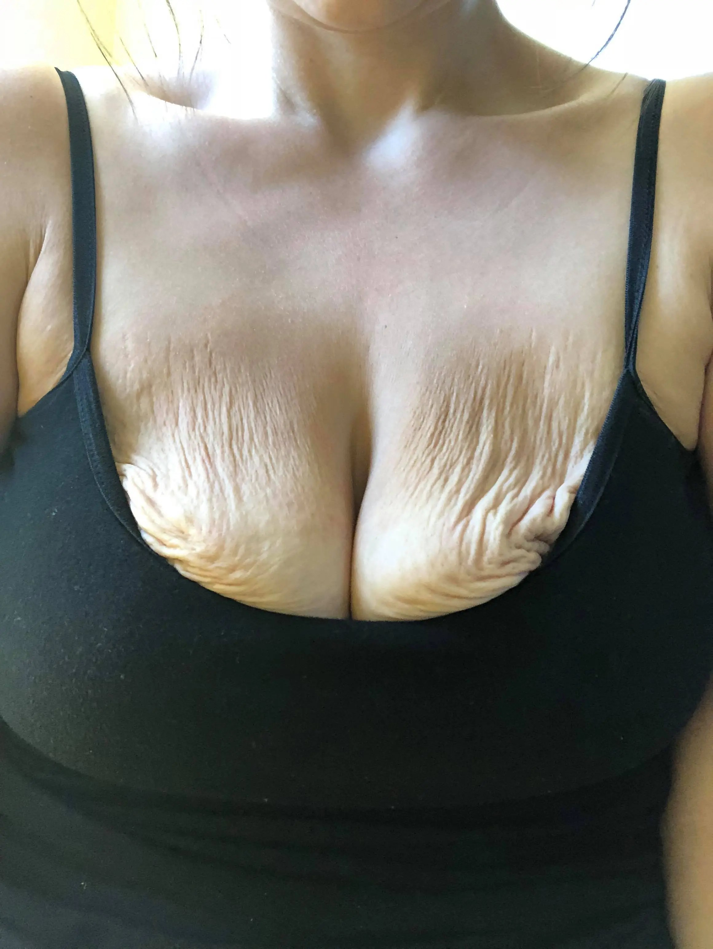 Let's Talk TaTa's: How Extreme Weight loss Affected my Breasts instantloss.com