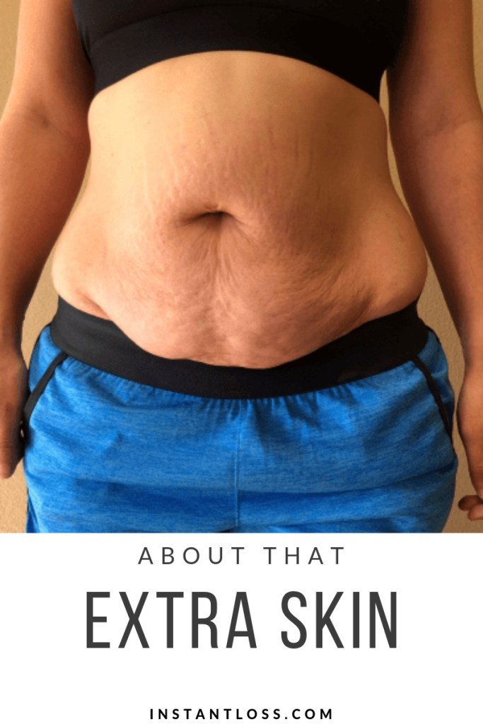 About That Extra Skin….