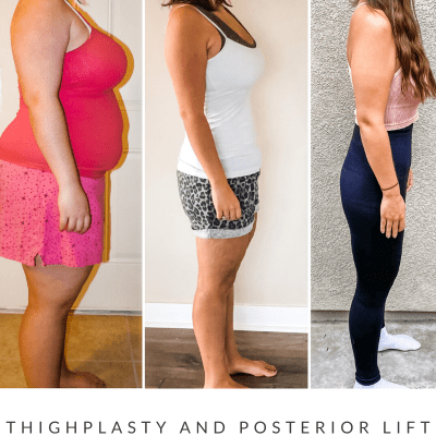 Thighplasty and Posterior Lift Week 1 Update