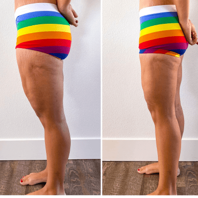 Thighplasty and Posterior Lift 1 Month Update