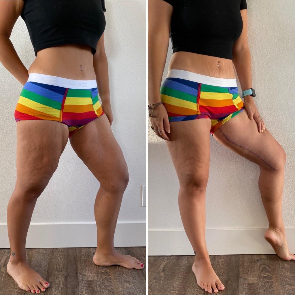 Thighplasty 4 Month Update instantloss.com