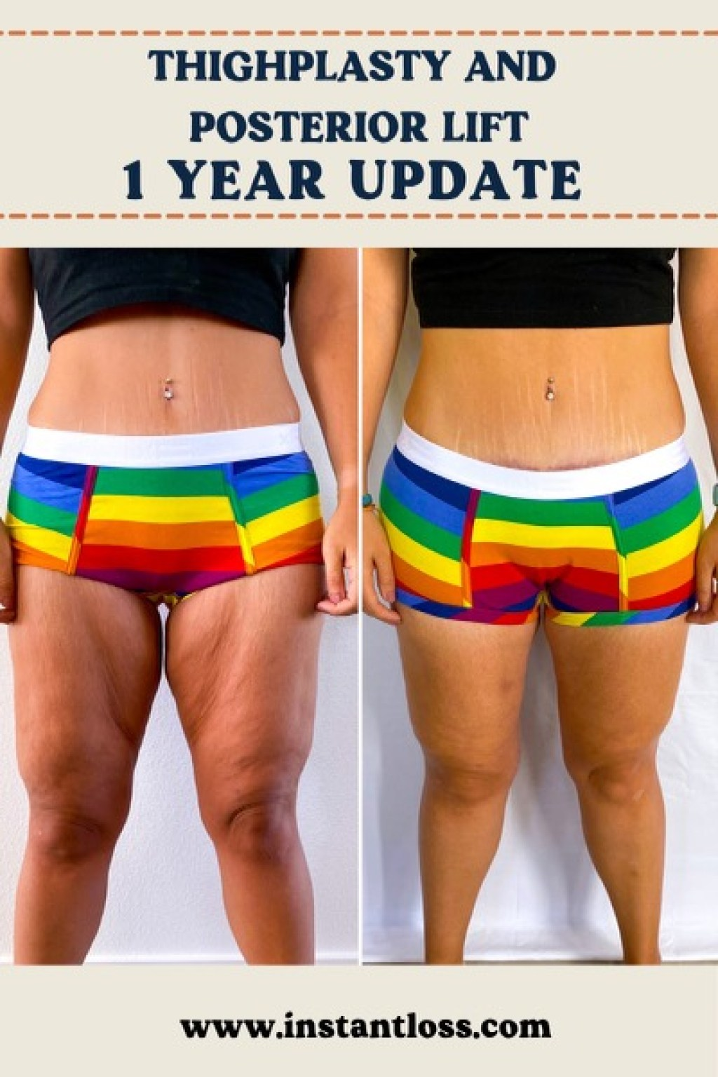 Thighplasty and Posterior Lift 1 Year Update instantloss.com